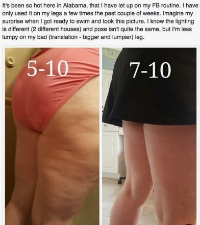 Before and after pictures of woman using the fasciablaster