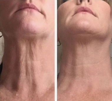 FasciaBlaster before and after image