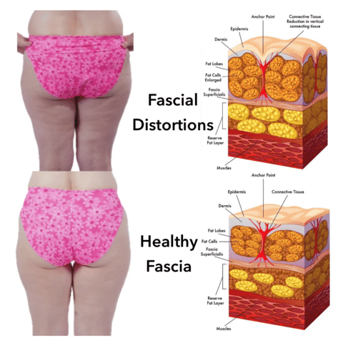 Fascial distortions and healthy fascia