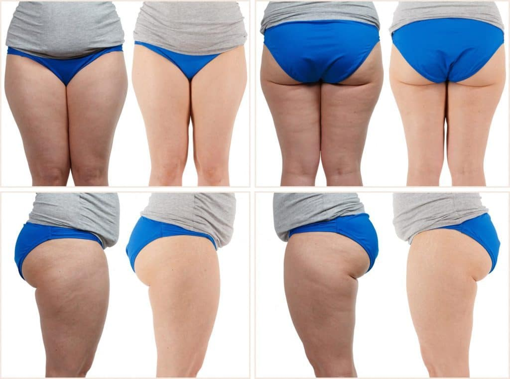 FasciaBlaster Before and After Photos