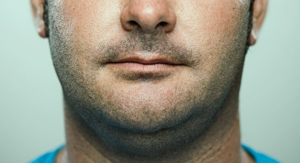 What Can Cause Weight Gain in Your Face