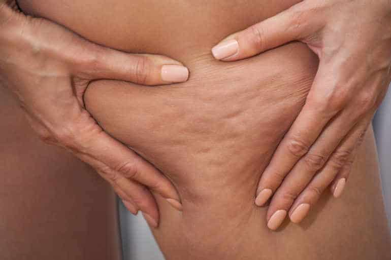 You may be frustrated and wondering how to get rid of cellulite .