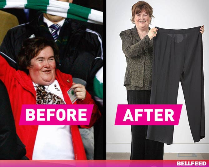 Susan Boyle is one of the celebrities that have lost weight because of health problems.